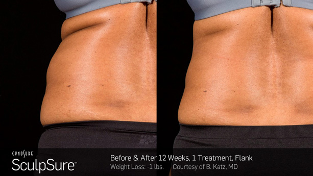 BodySculpting, Body Sculpting Windsor, SculpSure Windsor, Sculpsure,